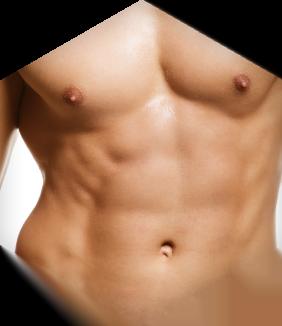 דוגמן לאחר ניתוח קוביות בבטן