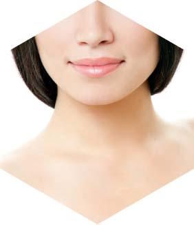 אישה לאחר ניתוח מתיחת פנים וצוואר