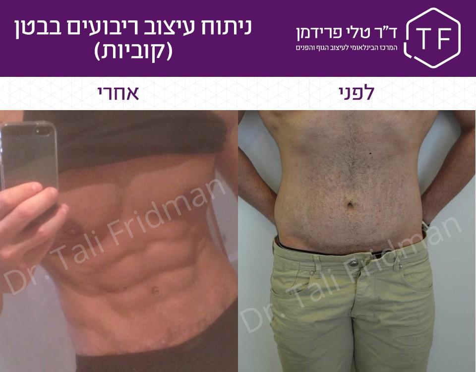 תמונות לפני אחרי ניתוח עיצוב ריבועים בבטן (קוביות)