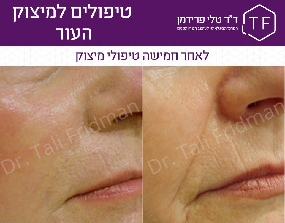תמונות לפני ואחרי טיפול למיצוק העור בפנים