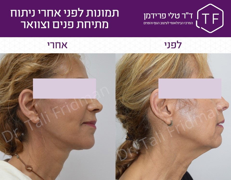 תמונות לפני ואחרי ניתוח מתיחת פנים וצוואר - ד