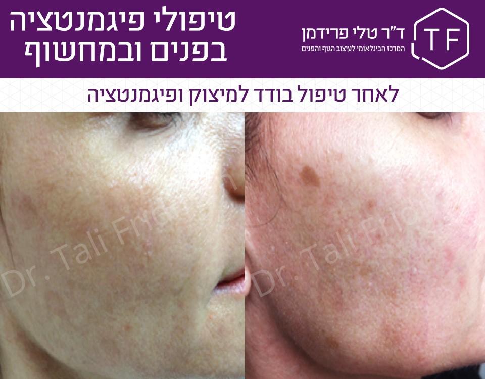 תמונות לפני ואחרי טיפול פיגמנטציה בפנים