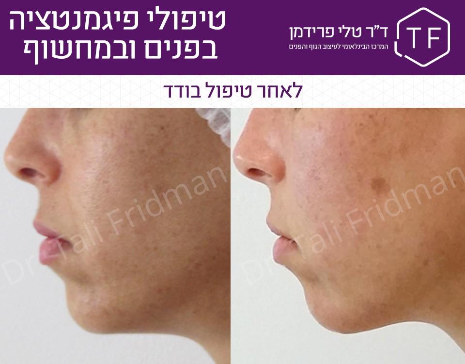 תמונות לפני ואחרי טיפול פיגמנטציה בפנים תמונות פרופיל - ד