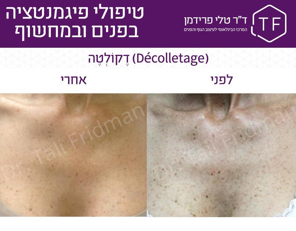 תמונות לפני ואחרי טיפול פיגמנטציה במחשוף - ד