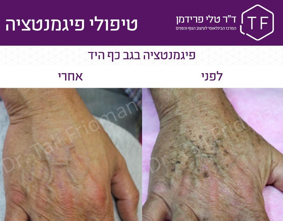 תמונות לפני ואחרי טיפול פיגמנטציה בגב כף היד - ד