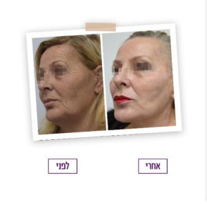 לפני ואחרי - ניתוח פנים