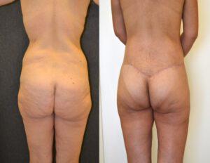תמונה לפני ואחרי ניתוח הרמת ישבן