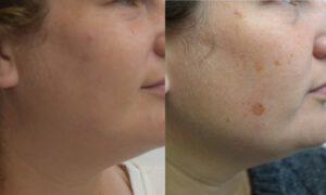 טיפולים אסתטיים לפני ואחרי