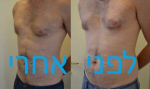גניקוסמטיה ועיצוב גוף הגבר - לפני ואחרי הטיפול