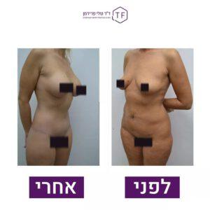 לפני ואחרי ניתוח הגדלת חזה