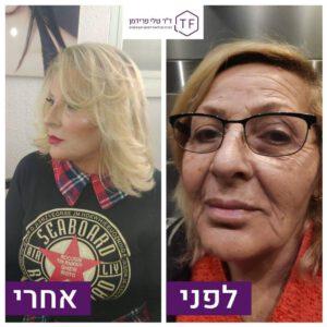 עיצוב פנים לפני ואחרי תמונה