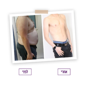 שאיבת שומן לפני ואחרי