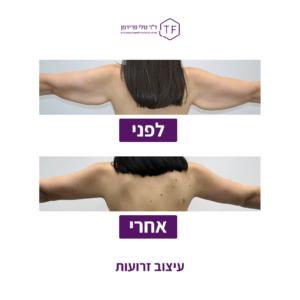 ניתוח עיצוב זרועות לפני ואחרי