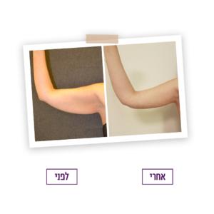 עיצוב זרועות לפני ואחרי הטיפול
