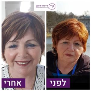 לפני ואחרי טיפול הזרקת שומן לפנים