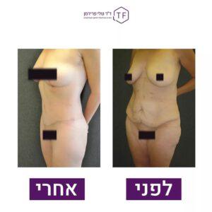 לפני ואחרי טיפול הרמה ומתיחת פלג גוף עליון